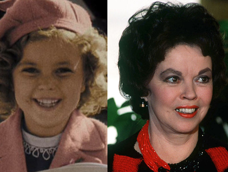 shirley-temple-side1