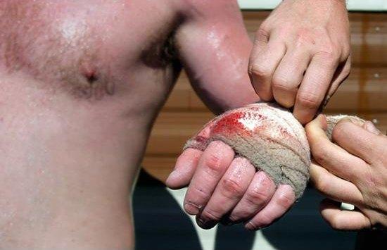 knuckle-image